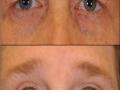 blepharoplasty-ptosis-2