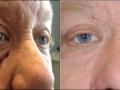 eyelid-recon-10