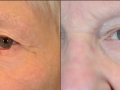 eyelid-recon-11