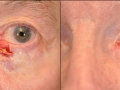 eyelid-recon-12