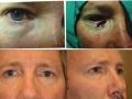 eyelid-recon-14