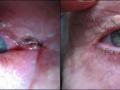 eyelid-recon-2