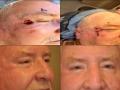 eyelid-recon-5