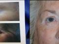 eyelid-recon-6