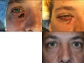 eyelid-recon-7