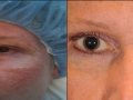 eyelid-recon-8