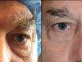 eyelid-recon-9