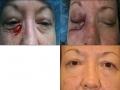 eyelid-recon