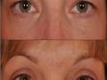 upper-eye-bleph-2