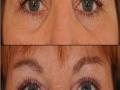 upper-eye-bleph-3