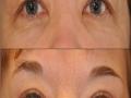 upper-eye-bleph-4