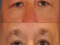 upper-eye-bleph-5