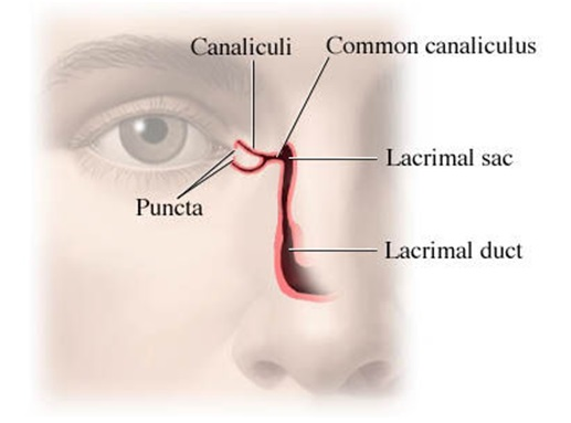Homeopathic remedy for blocked tear duct in adults